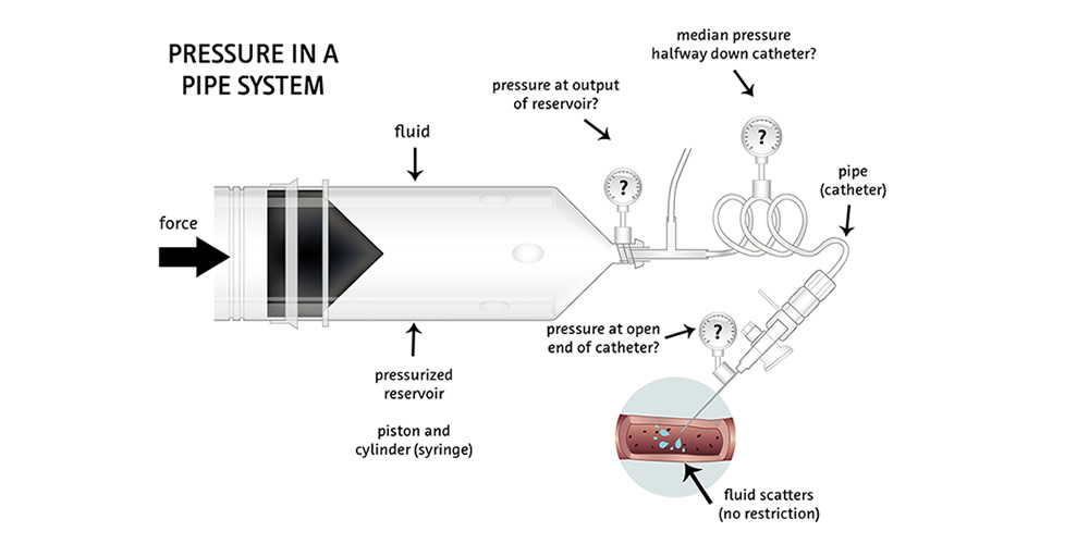 Illustration Radiologie Injektorsystem
