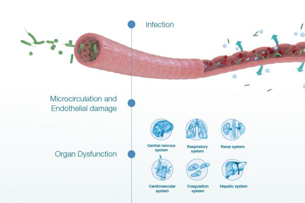 Infection - from vessel to sepsis